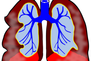lungs 39981 960 720.news